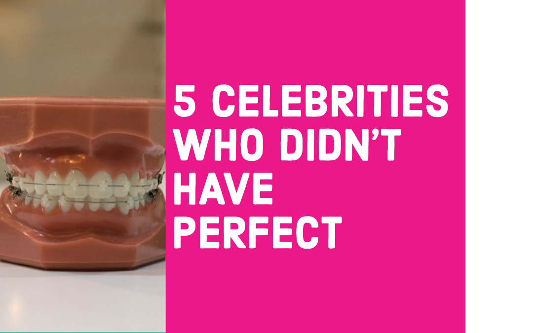 5 Celebrities Who Didn't Have Perfect Teeth